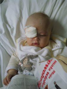 Początki leczenia 225x300 Karolinka zmaga się z rakiem o oczko
