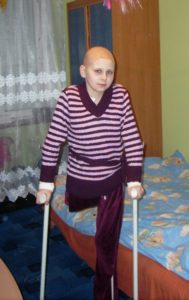 Ewa po operacji